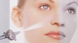 depilazione laser, lipomi cutanei, trattamento inestetismi del viso