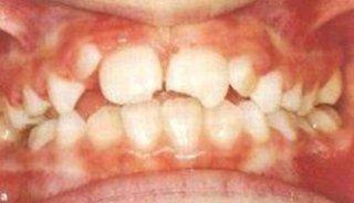 Ricostruzioni dentali Napoli