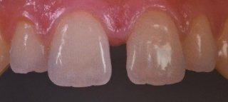 ricostruzione estetica dentaria