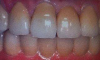 protesi su denti natrali