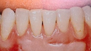 parodontologia rigenerazione gengivectomia e lembi