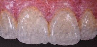 Correzione di diastemi