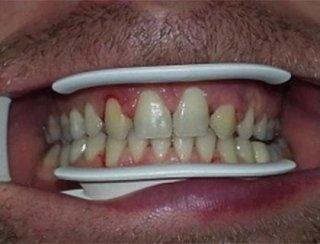 Inserimento e ricostruzione dente