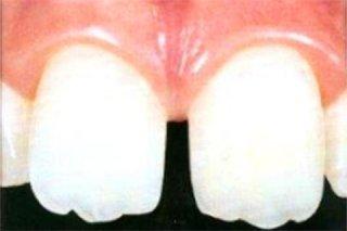 Riduzione spazio tra i denti