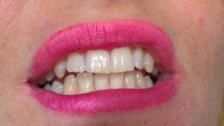 ricostruzioni estetiche dentarie