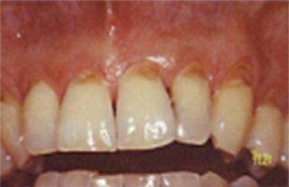 Pulizia denti Napoli
