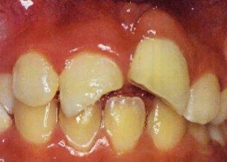 Ricostruzioni dentali