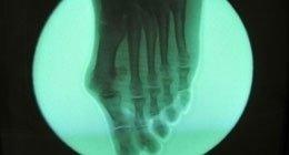 analisi ossa piede