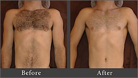 manscaping and body grooming for men in santa rosa, ca
