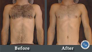 manscaping beforemanscaping chest and arms, before & after and after