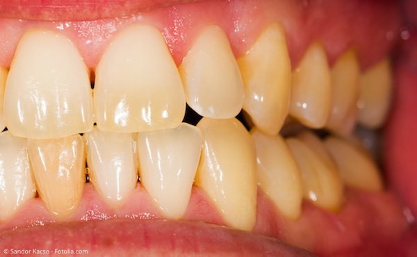 Dunkle Zähne