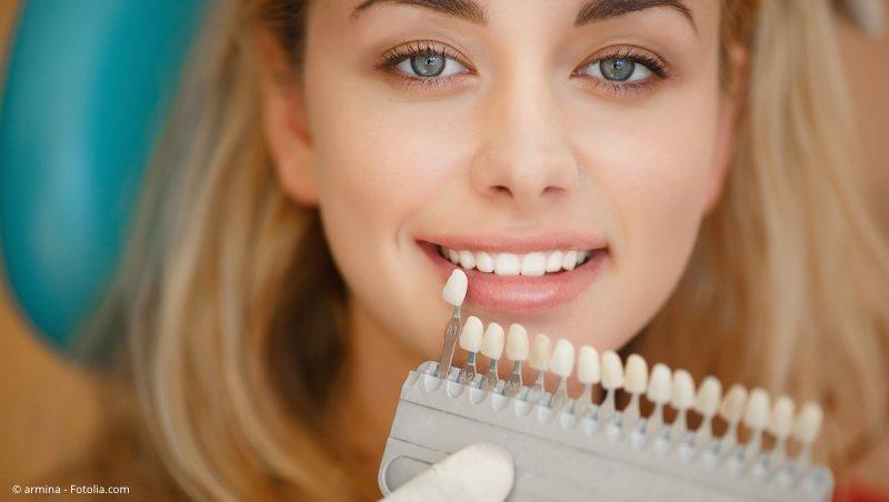 Kontrolle der Zahnaufhellung mit der Farbskala