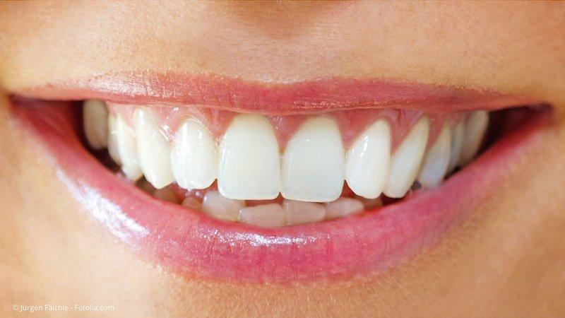 Weiße Zähne nach dem Bleaching
