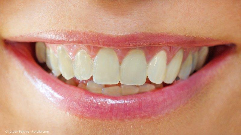 Dunkle Zähne vor der Zahnaufhellung