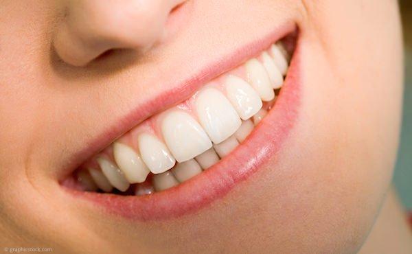Veneers (Verblendschalen) für ästhetische Zähne