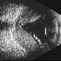 retinopatia, distacco posteriore di vitreo, trombosi