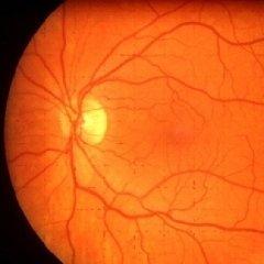 competenza clinica, competenza chirurgica, prevenzione malattie oculari
