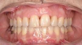 Post intervento ortodontico