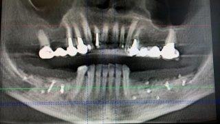 Aumento di Volume Osseo - Parrucci dr. Andrea, Medico Dentista - Grosseto (GR)
