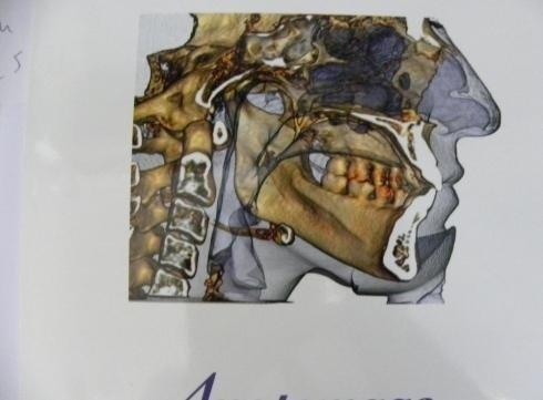 Struttura cranio mandibolare