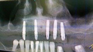 Tecnica di Split Crest - Parrucci dr. Andrea, Medico Dentista - Grosseto (GR)