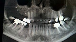 Rialzo del Seno Mascellare - Parrucci dr. Andrea, Medico Dentista - Grosseto (GR)