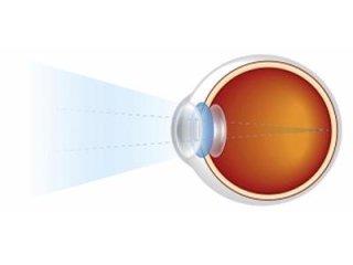 Cura astigmatismo
