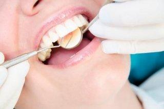 dentista controlla denti di paziente con specchietto e specillo