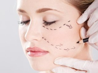 Chirurgia plastica facciale