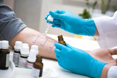 test allergici