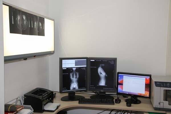 eco muscolo scheletrica computerizzata