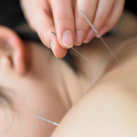 cura con agopuntura