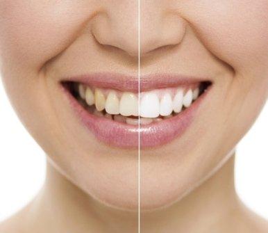 lampada sbiancante, sbiancamento denti, odontoiatria estetica