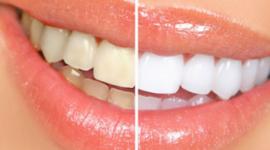 sbiancamento dentale, odontoiatria estetica, estetica dentale