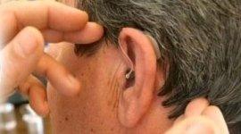 impianti uditivi, amplificazione uditiva, impianti aurecolari