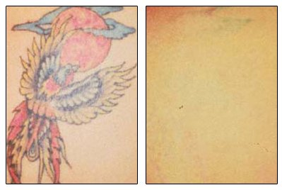 Tattoo Removal | Cosmetic Surgery Cleveland, OH