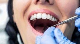 ragazza con la bocca aperta, mani del dentista con guanti in lattice blu, utensile dentistico
