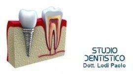perno dentale in titanio, protesi dentaria fissa, dente rifatto