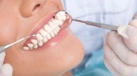 specchietto dentistico, denti bianchi, viso di ragazza