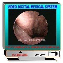 fibrolaringoscopia,tromba d