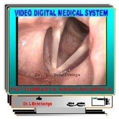 fibrolaringoscopia,tumori della gola,polipi corde vocali,noduli corde vocali,raucedine,disfonia,raschietto in gola