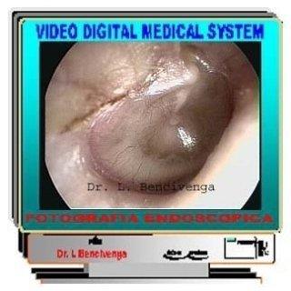 versamento endotimpanico,glue ear,cateterimi tubarici,insufflazioni endotimpaniche,orecchio tappato
