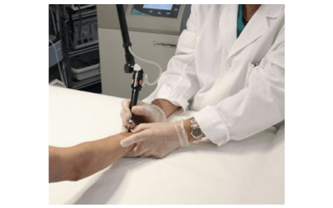 chirurgia laser epidermide