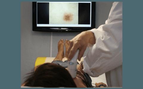 dermatoscopia e mappatura della pelle