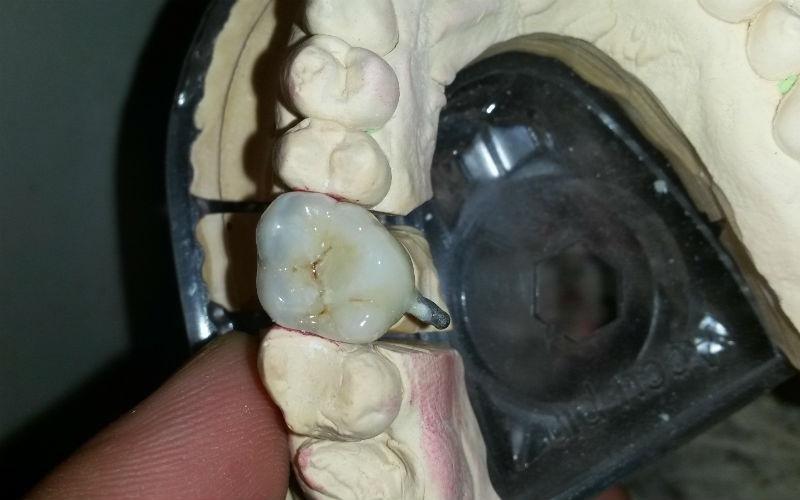 calco dentale per impianto