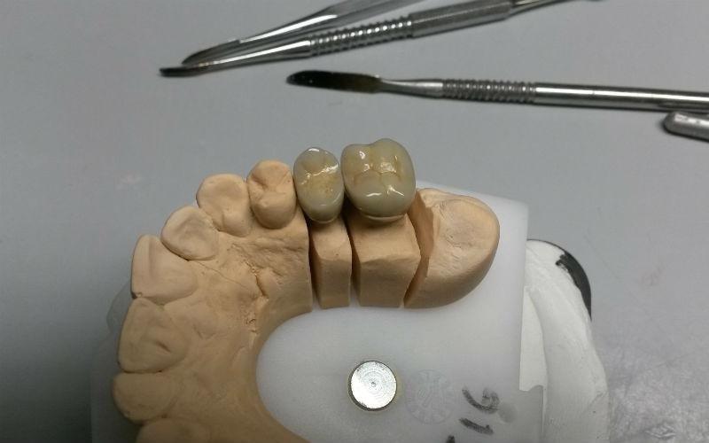 calco dentale Dental Bac