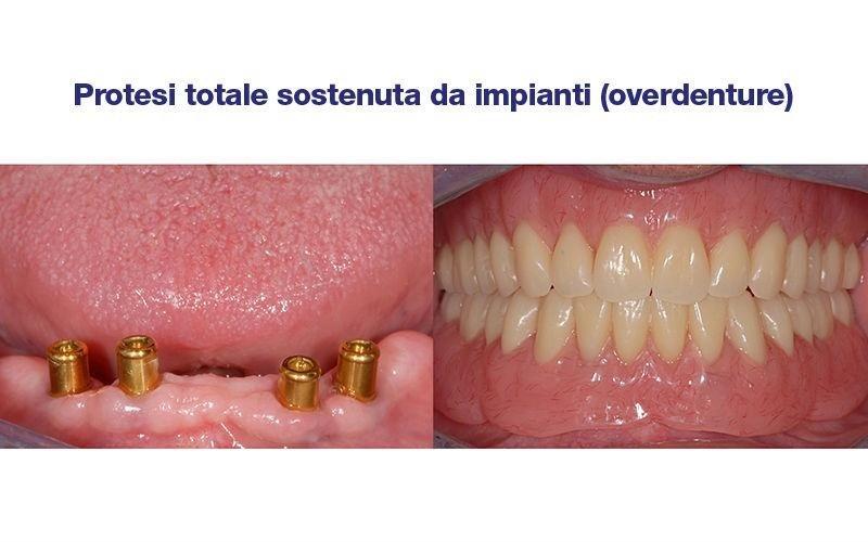 impianti protesi dentale totale