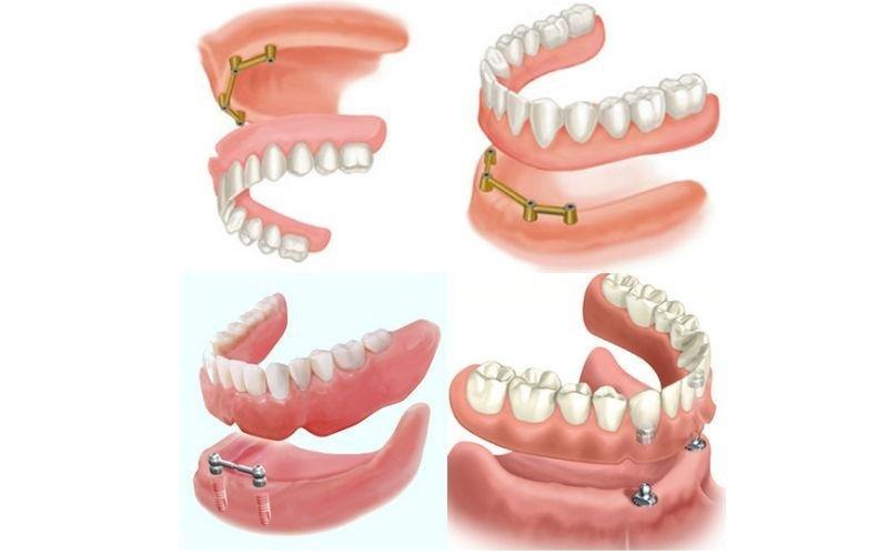 impianti dentali semifissi Dental Bac