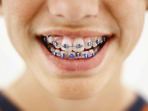 apparecchio denti per bambino
