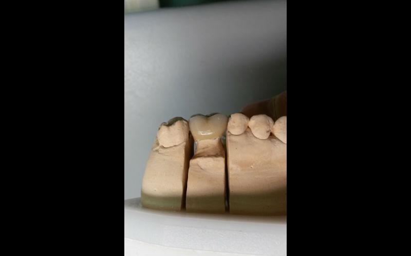 protesi dentale su calco
